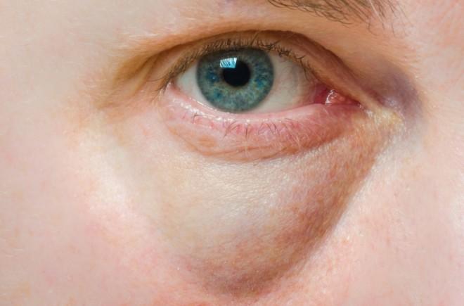 涙 袋 腫れ 片目 痛い