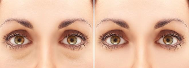 「目袋・通常」の比較画像