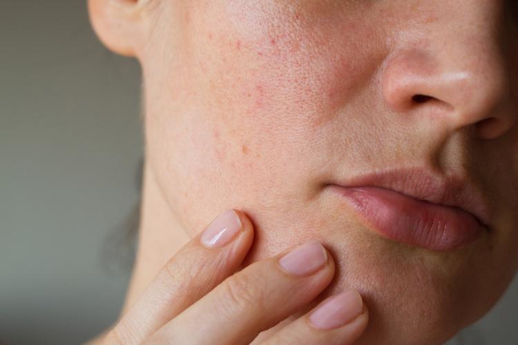 お肌のゴワつきが出ている場合の対策法